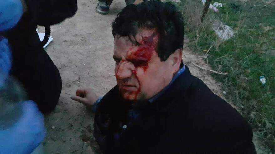 שני הרוגים בפינוי אלים של הכפר אום אלחיראן בנגב
